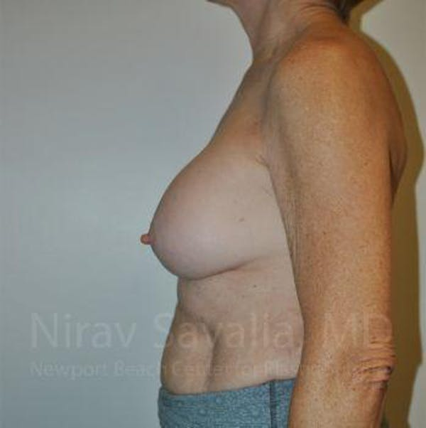 Breast Implant Revision Gallery - Patient 1655567 - Image 5