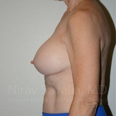 Breast Implant Revision Gallery - Patient 1655567 - Image 6