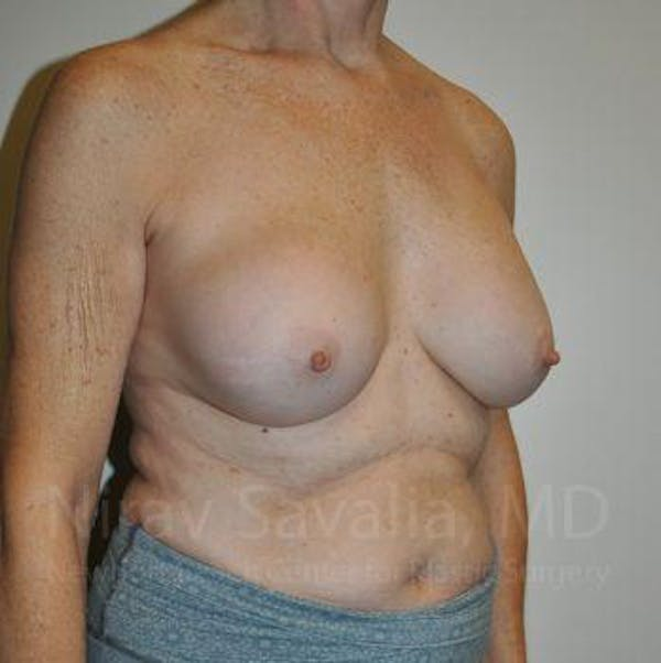 Breast Implant Revision Gallery - Patient 1655567 - Image 7