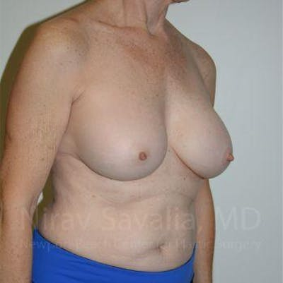 Breast Implant Revision Gallery - Patient 1655567 - Image 8