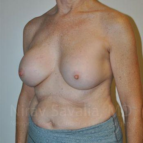 Breast Implant Revision Gallery - Patient 1655567 - Image 9