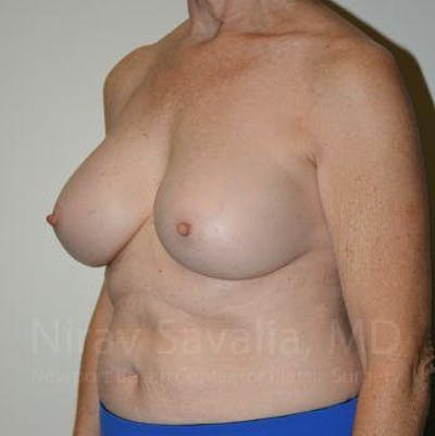 Breast Implant Revision Gallery - Patient 1655567 - Image 10