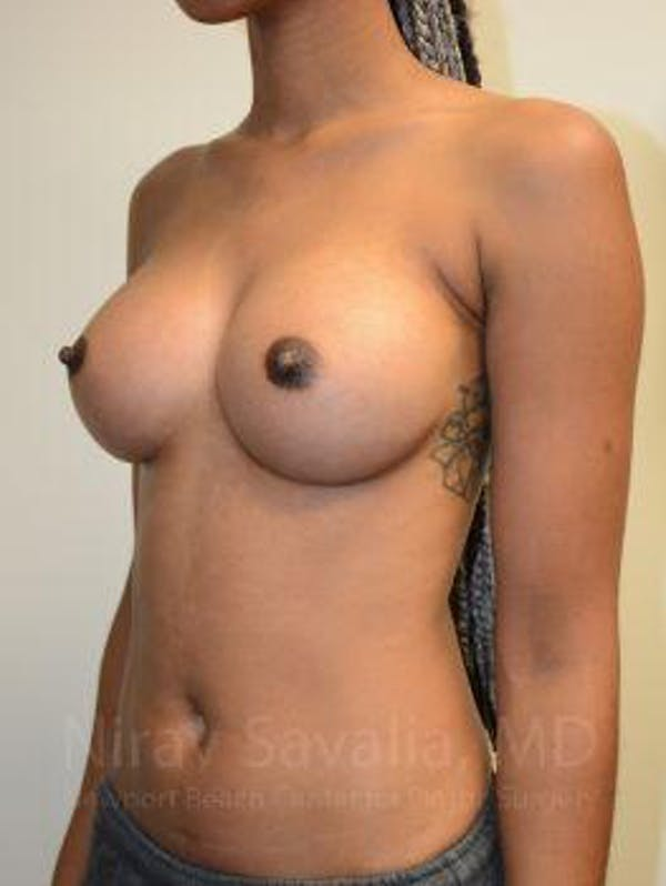 Breast Augmentation Gallery - Patient 1655568 - Image 10