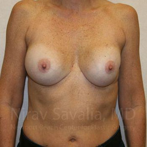 Breast Implant Revision Gallery - Patient 1655570 - Image 1