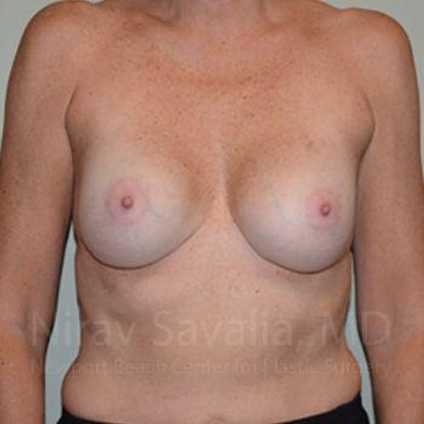 Breast Implant Revision Gallery - Patient 1655570 - Image 2