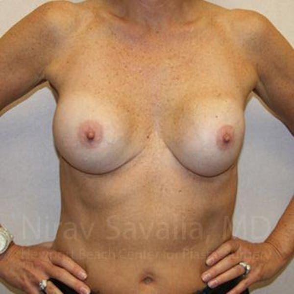 Breast Implant Revision Gallery - Patient 1655570 - Image 3