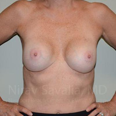 Breast Implant Revision Gallery - Patient 1655570 - Image 4