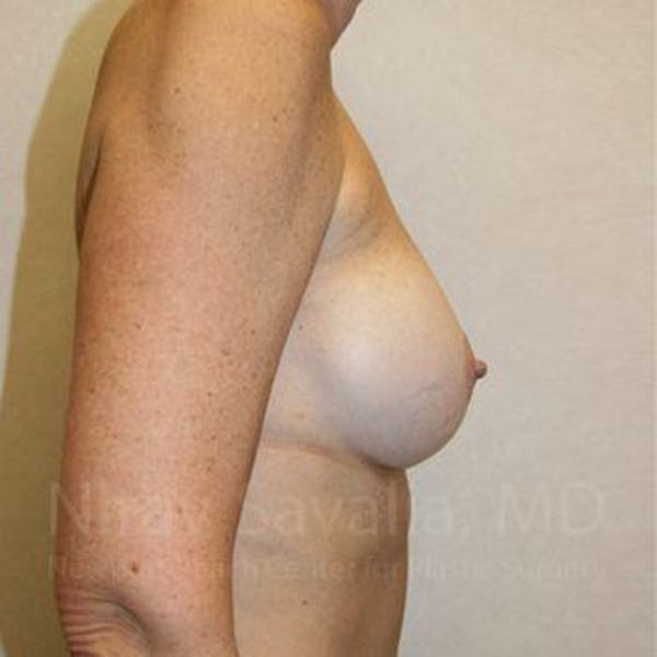 Breast Implant Revision Gallery - Patient 1655570 - Image 5