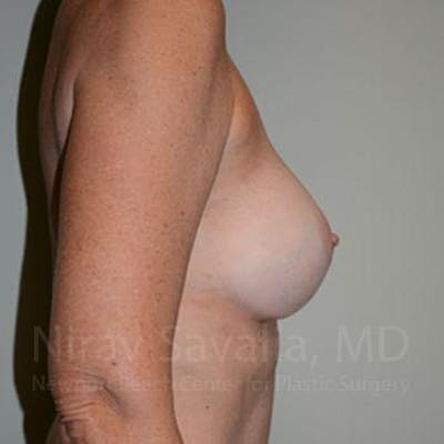 Breast Implant Revision Gallery - Patient 1655570 - Image 6
