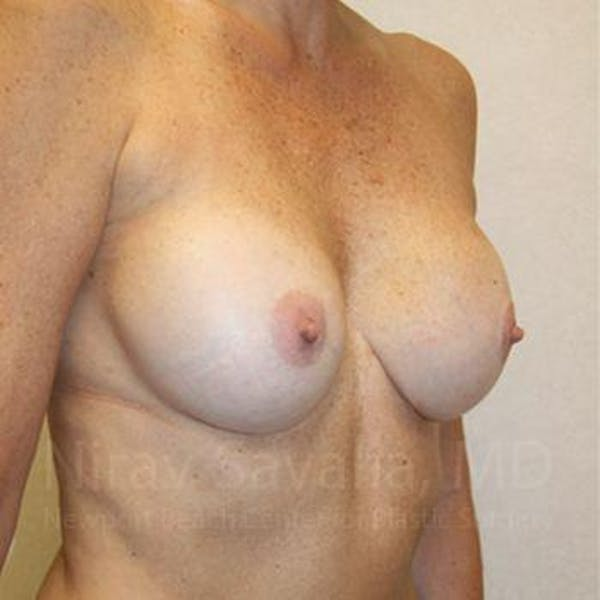 Breast Implant Revision Gallery - Patient 1655570 - Image 7