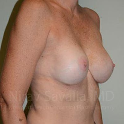 Breast Implant Revision Gallery - Patient 1655570 - Image 8