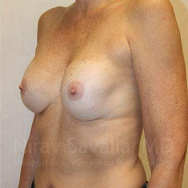 Breast Implant Revision Gallery - Patient 1655570 - Image 9