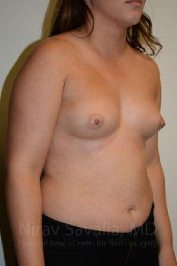 Breast Augmentation Gallery - Patient 1655571 - Image 9