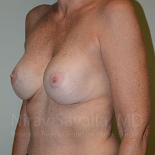 Breast Implant Revision Gallery - Patient 1655570 - Image 10