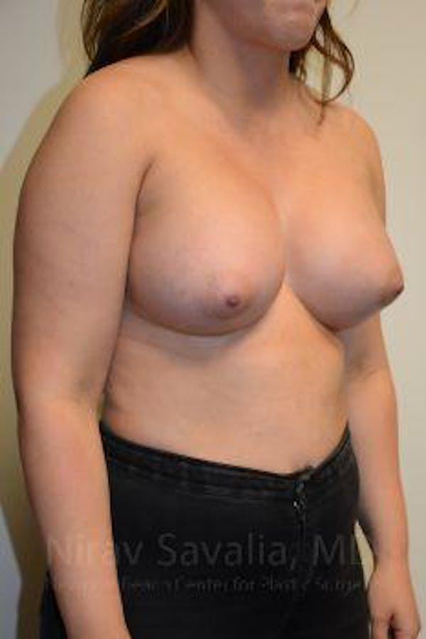 Breast Augmentation Gallery - Patient 1655571 - Image 10