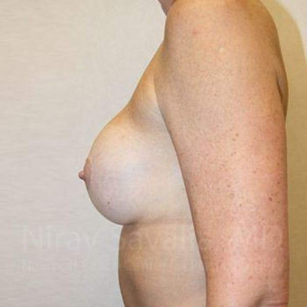 Breast Implant Revision Gallery - Patient 1655570 - Image 11