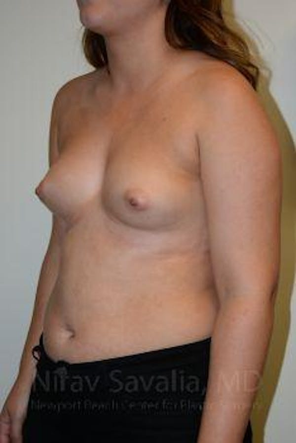 Breast Augmentation Gallery - Patient 1655571 - Image 11