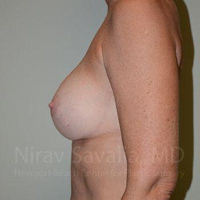 Breast Implant Revision Gallery - Patient 1655570 - Image 12