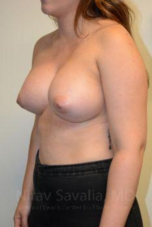 Breast Augmentation Gallery - Patient 1655571 - Image 12