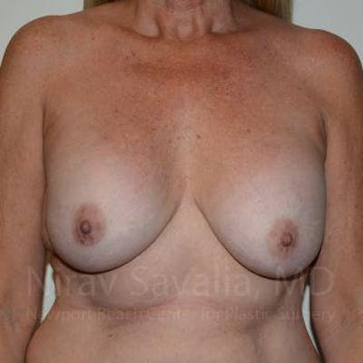 Breast Implant Revision Gallery - Patient 1655572 - Image 1