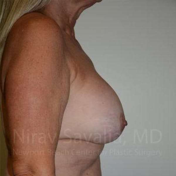 Breast Implant Revision Gallery - Patient 1655572 - Image 9