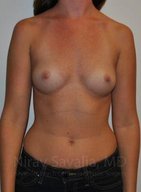 Breast Augmentation Gallery - Patient 1655574 - Image 1