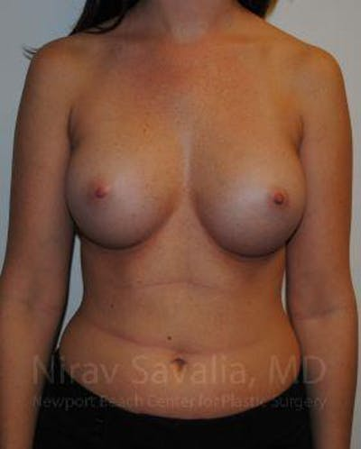 Breast Augmentation Gallery - Patient 1655574 - Image 2