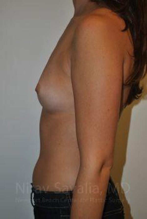 Breast Augmentation Gallery - Patient 1655574 - Image 7