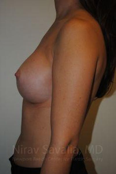 Breast Augmentation Gallery - Patient 1655574 - Image 8
