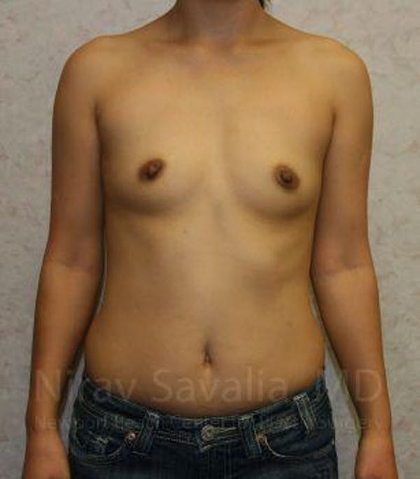 Breast Augmentation Gallery - Patient 1655576 - Image 1