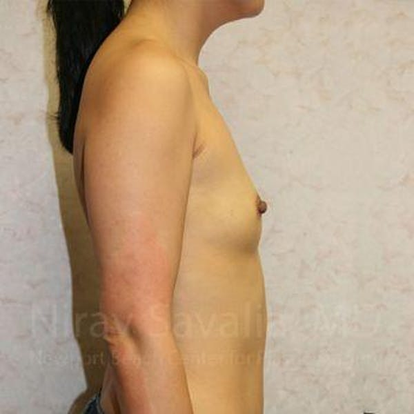 Breast Augmentation Gallery - Patient 1655576 - Image 5