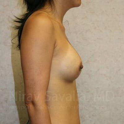 Breast Augmentation Gallery - Patient 1655576 - Image 6