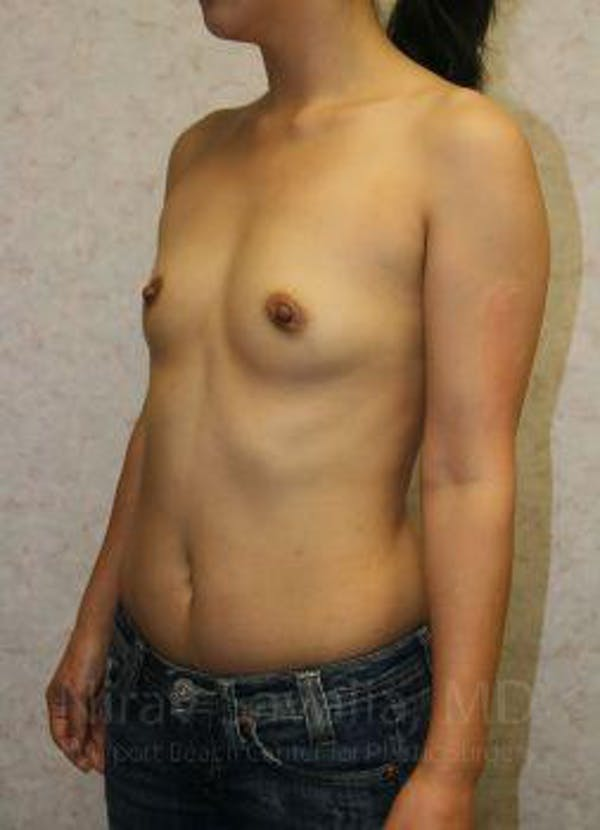 Breast Augmentation Gallery - Patient 1655576 - Image 7