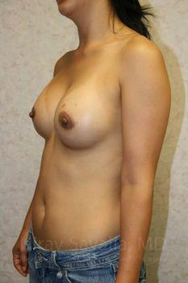 Breast Augmentation Gallery - Patient 1655576 - Image 8