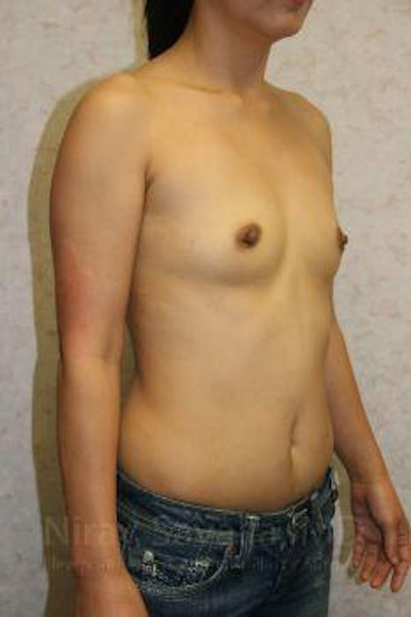 Breast Augmentation Gallery - Patient 1655576 - Image 9