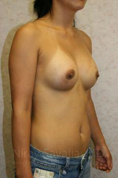 Breast Augmentation Gallery - Patient 1655576 - Image 10