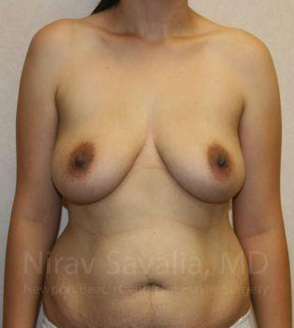 Breast Augmentation Gallery - Patient 1655577 - Image 1