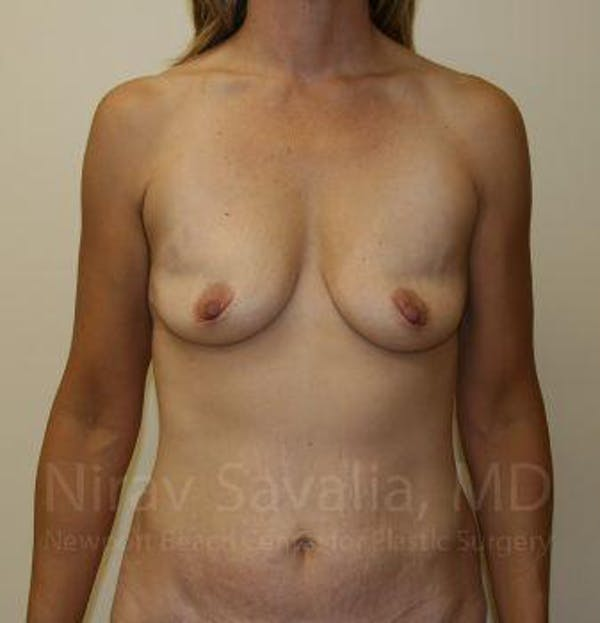 Breast Augmentation Gallery - Patient 1655578 - Image 1