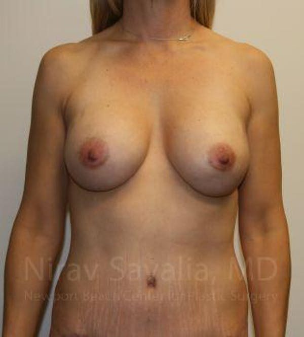 Breast Augmentation Gallery - Patient 1655578 - Image 2
