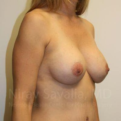 Breast Augmentation Gallery - Patient 1655578 - Image 8