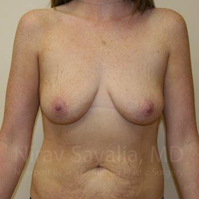 Breast Augmentation Gallery - Patient 1655579 - Image 1