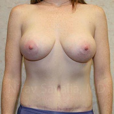 Breast Augmentation Gallery - Patient 1655579 - Image 2