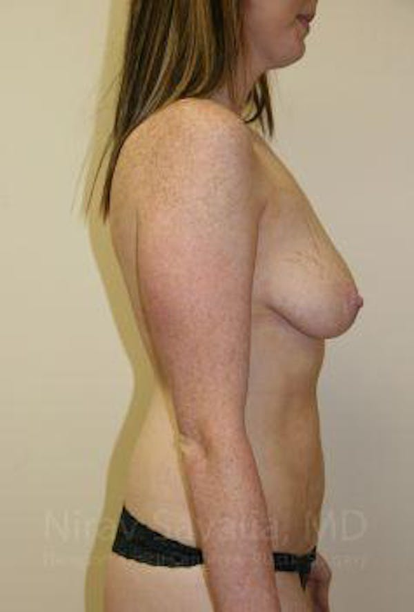 Breast Augmentation Gallery - Patient 1655579 - Image 3