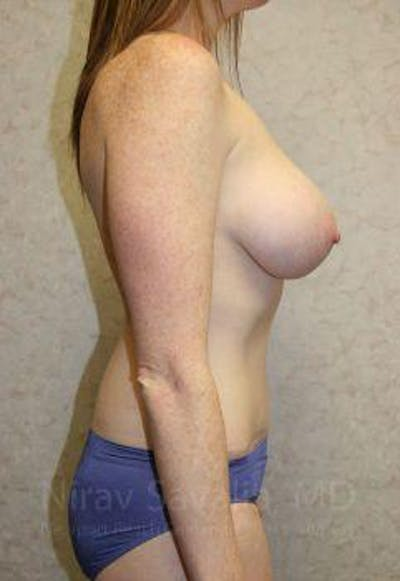 Breast Augmentation Gallery - Patient 1655579 - Image 4