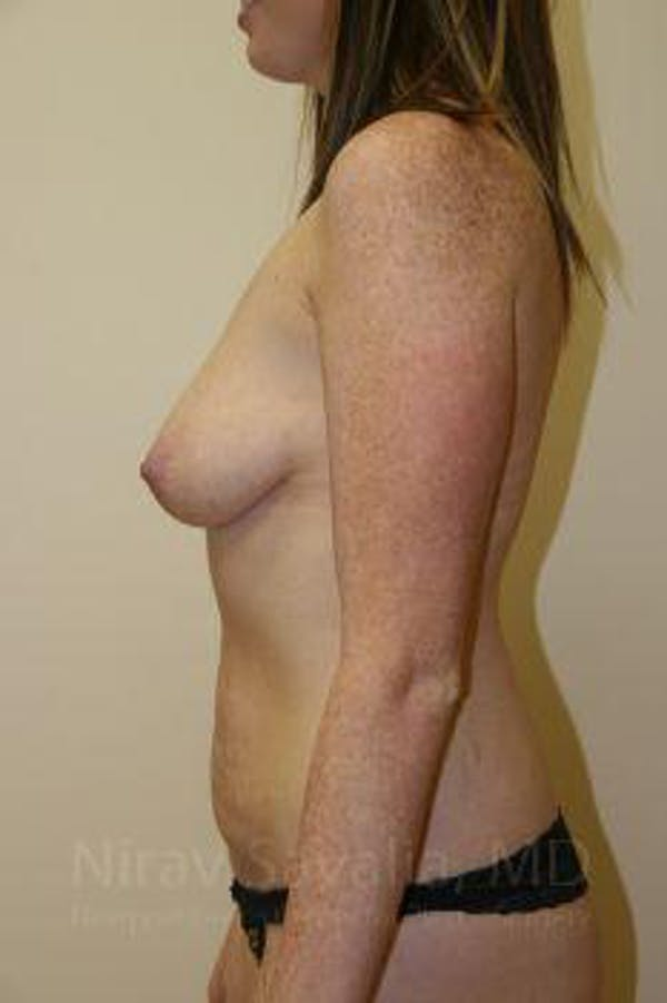 Breast Augmentation Gallery - Patient 1655579 - Image 5