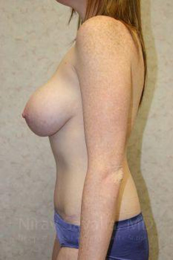 Breast Augmentation Gallery - Patient 1655579 - Image 6
