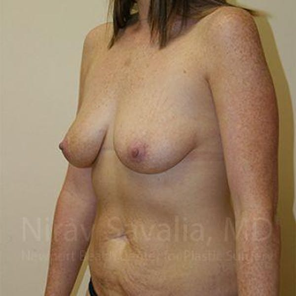 Breast Augmentation Gallery - Patient 1655579 - Image 7