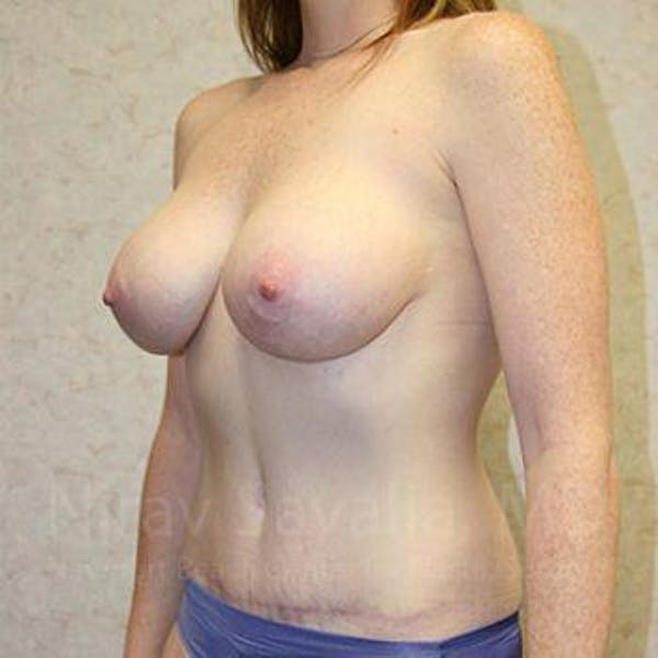 Breast Augmentation Gallery - Patient 1655579 - Image 8