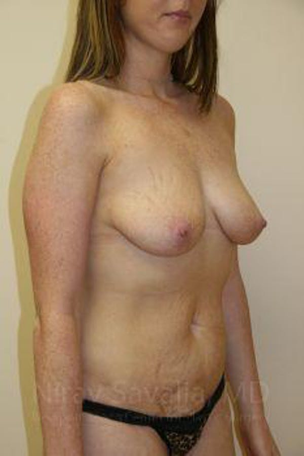 Breast Augmentation Gallery - Patient 1655579 - Image 9