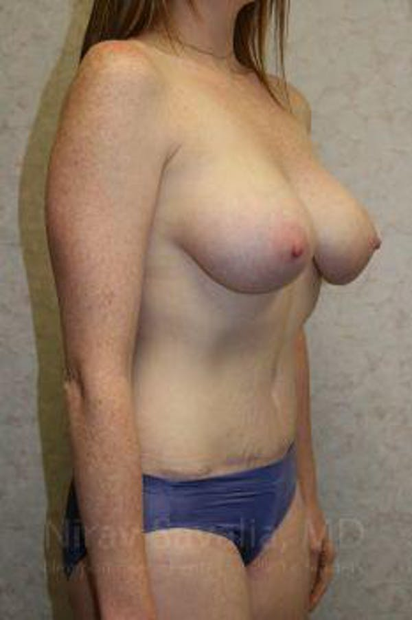 Breast Augmentation Gallery - Patient 1655579 - Image 10
